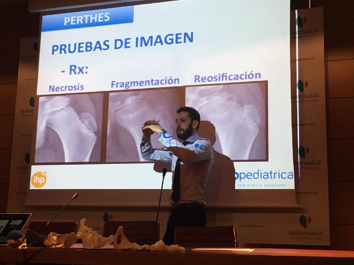Los profesionales de Orthopediatrica se consolidan como referente a nivel mundial