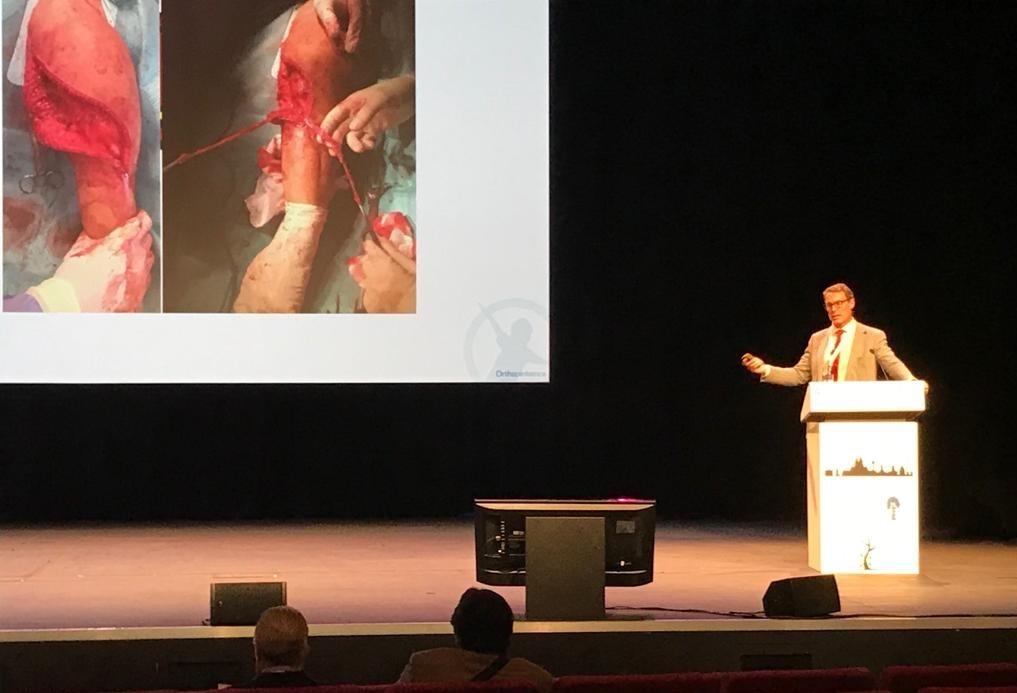 Grupo IHP, presente en Liverpool en uno de los congresos más importantes sobre ortopediatría