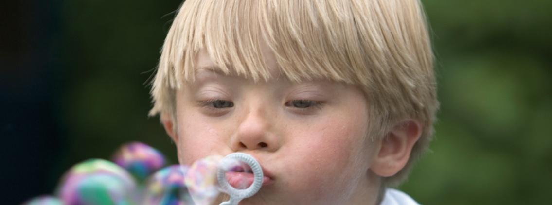 Grupo IHP participa en un estudio internacional que analiza si las personas con síndrome de Down son más vulnerables a la Covid-19