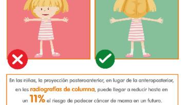 Dale la vuelta: un simple gesto para reducir el cáncer de mama